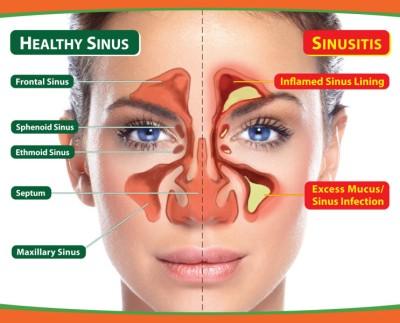 Obat Sinusitis Tradisional Paling Ampuh